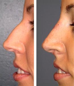 nose job 1