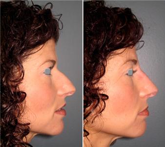 nose job 4
