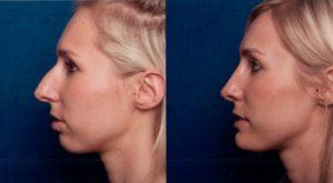 5-minute nose job