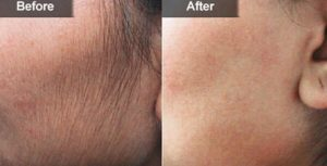 Laser Hair Removal Fontana