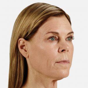 Cheek Botox Fontana, CA