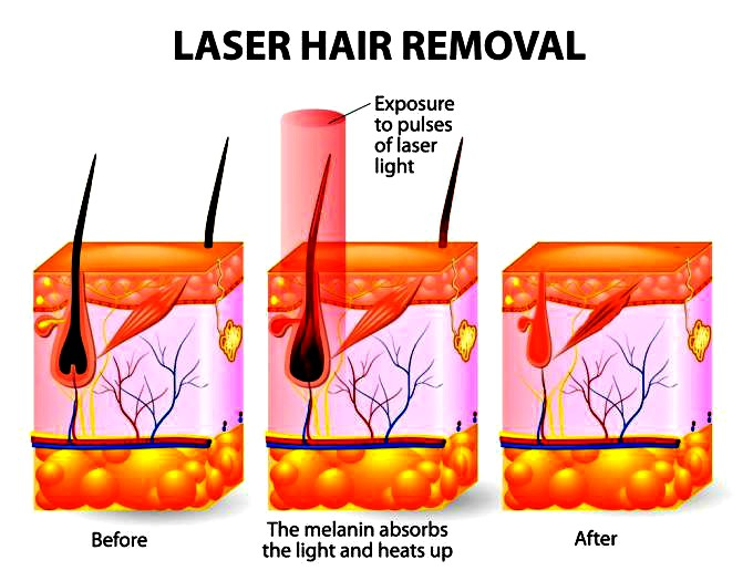 laser hair removal Upland