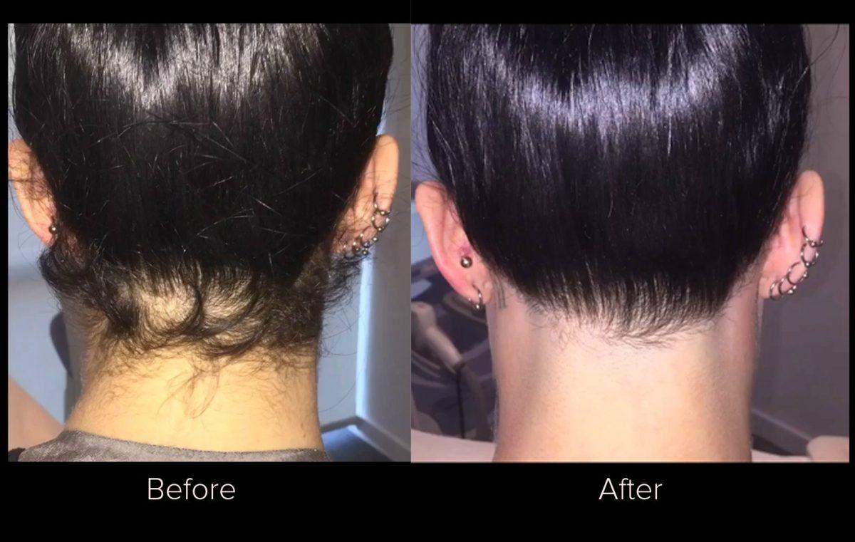 laser hair removal Rancho Cucamonga