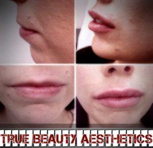 lip augmentation in Rancho Cucamonga