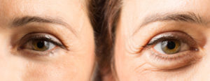 Botox in Upland