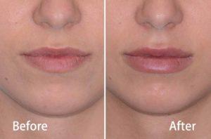 lip augmentation in fontana