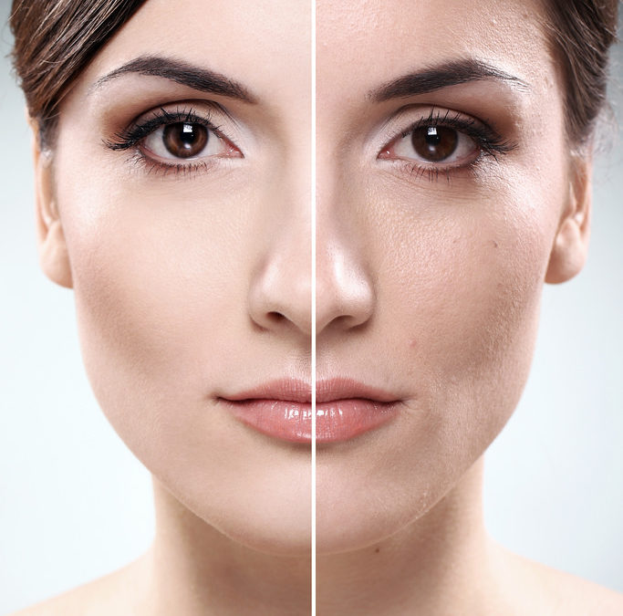 Botox in Rancho Cucamonga Complete Guide