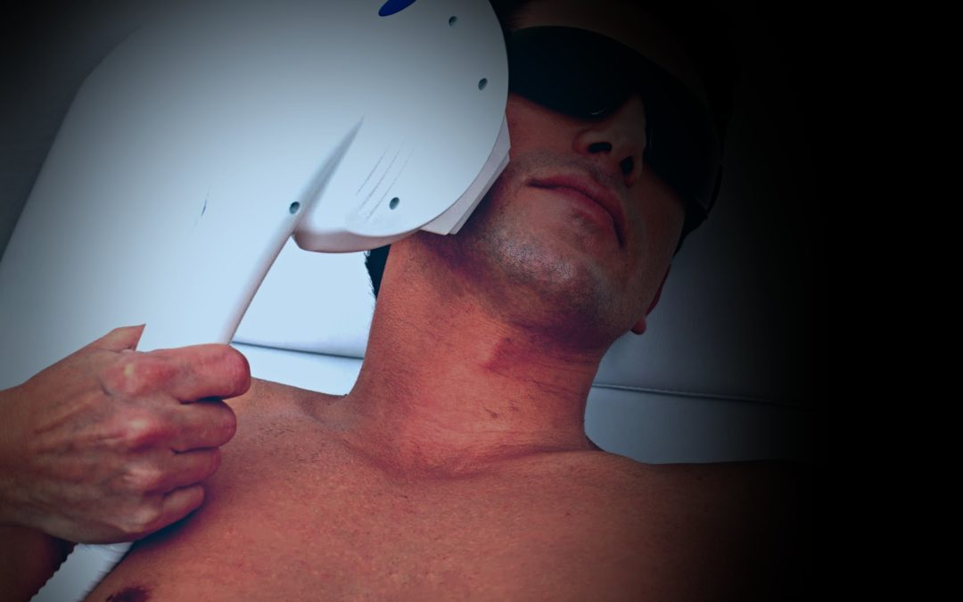 Laser Hair Removal in Rancho Cucamonga Complete Guide