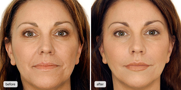 Botox Fontana, CA | Cheap Botox Fontana | Call Now: 909-560-9487